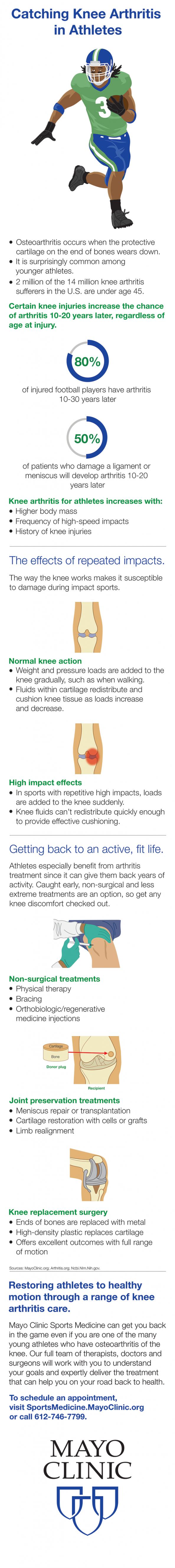 Catching Knee Arthritis in Athletes